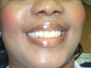 , Cosmetic Dentistry