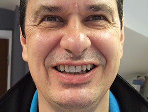 dental implants, Dental Implants in Reading