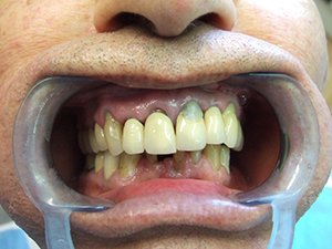 , Dental Bridges in Reading