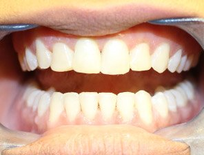 , Composite Fillings in Reading
